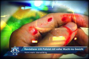 Nicht mehr dienstfähig: Randalierer tritt Polizist mit voller Wucht ins Gesicht