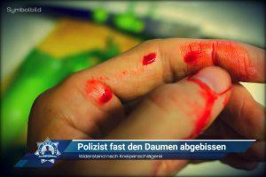 Widerstand nach Kneipenschlägerei: Polizist fast den Daumen abgebissen