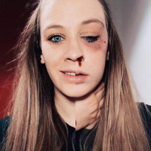 Es geschieht immer noch zu häufig: Gewalt gegen Frauen