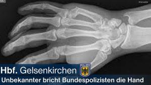 Hinweis auf Mundschutzpflicht eskaliert: Mann bricht Polizisten die Hand